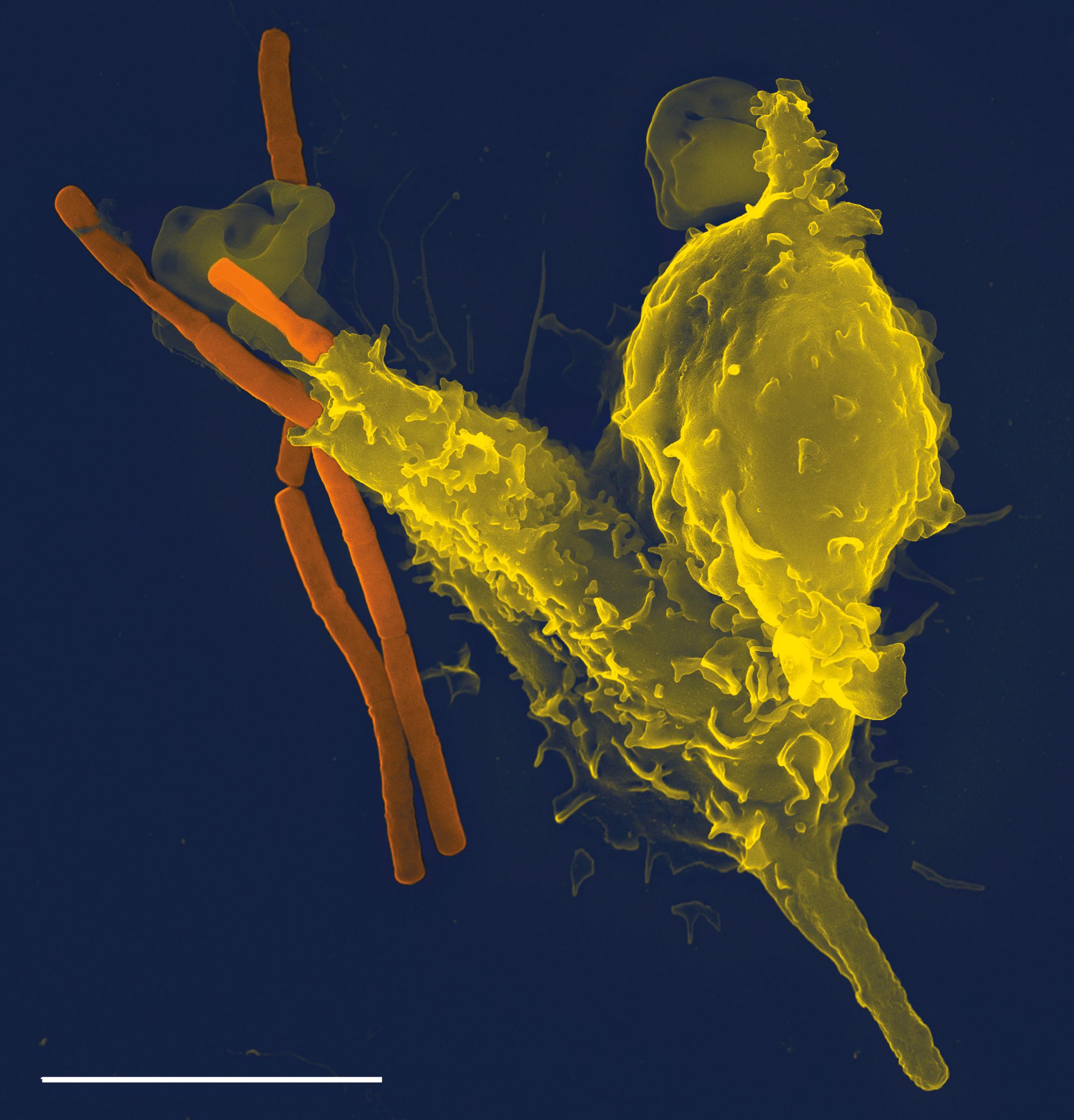 Un neutrófilo en acción. Fuente: Wikimedia
