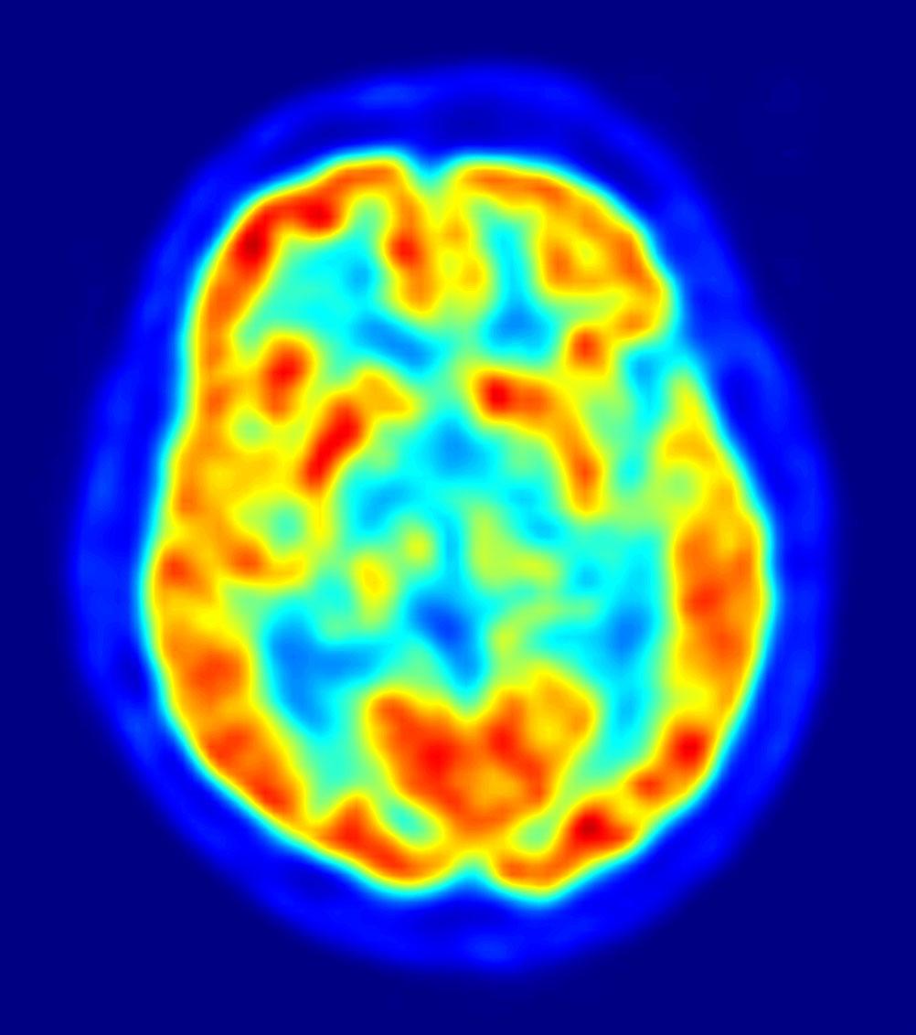 PET de un cerebro. Fuente: Wikimedia